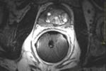 MRI image of prostate